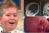 Cặp vợ chồng kiên quyết sinh con không có não, 3 năm sau kỳ tích xuất hiện