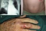 Cảnh báo bệnh ăn mòn cơ thể Whitmore tái bùng phát tại Việt Nam